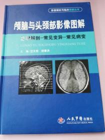 颅脑与头颈部影像图解