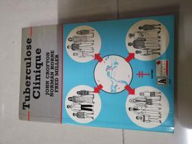 tuberculose clinique