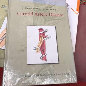 Mordern trends in vascular durgery  carotid artery didease
