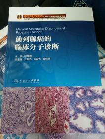 前列腺癌的临床分子诊断