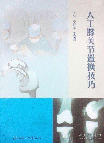 人工膝关节置换技巧