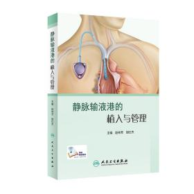 静脉输液港的植入与管理(配增值)
